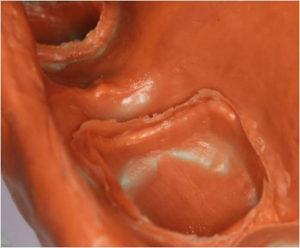 シリコンによる虫歯の型どり