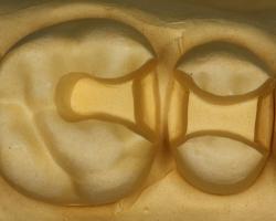 精密な虫歯治療用模型