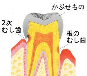 二次虫歯や根の虫歯