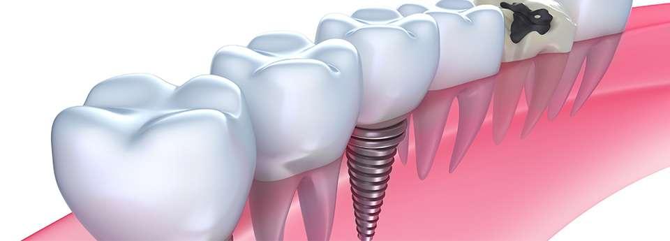 歯科用インプラント