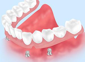 インプラント支持の義歯