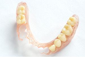 バネの見えない入れ歯