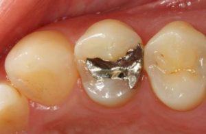 小さな銀歯