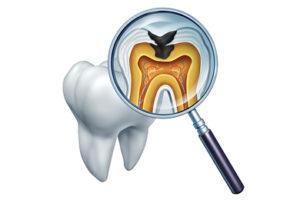 歯の中に細菌が侵入して根管治療が必要