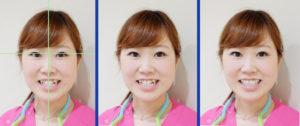 審美歯科 術前の診断