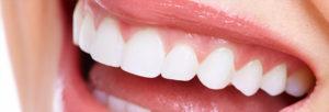 ホワイトニングをした歯