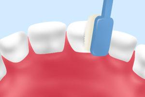 小児歯科の歯磨き指導