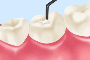 小児歯科のシーラント