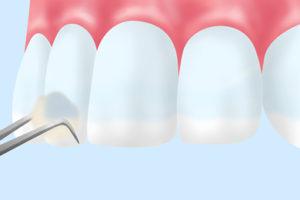 フッ素塗布で小児の虫歯予防
