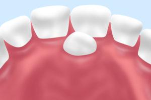 小児歯科の過剰歯の抜歯