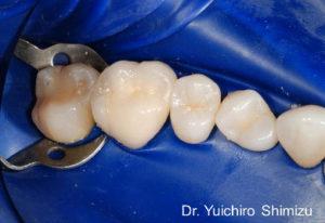 ラバーダムを用いた小児歯科