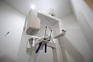 歯周病のレントゲン検査