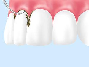 歯周病基本治療 スケーリング