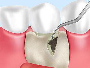 歯周病外科治療 フラップ手術