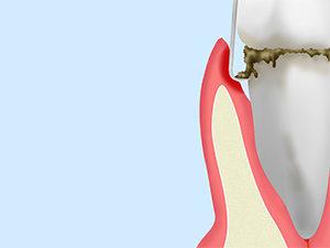 歯周病基本治療 ルートプレーニング