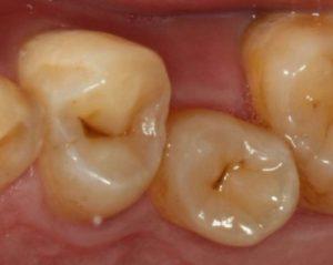 進行性ではない黒い虫歯