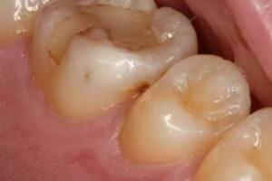 詰めものの2次虫歯と接触点の虫歯