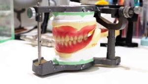 義歯と咬合器